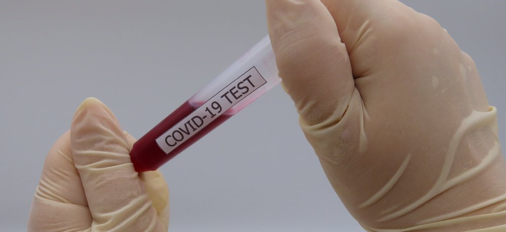 Immunity passport and antibody test sample for labs